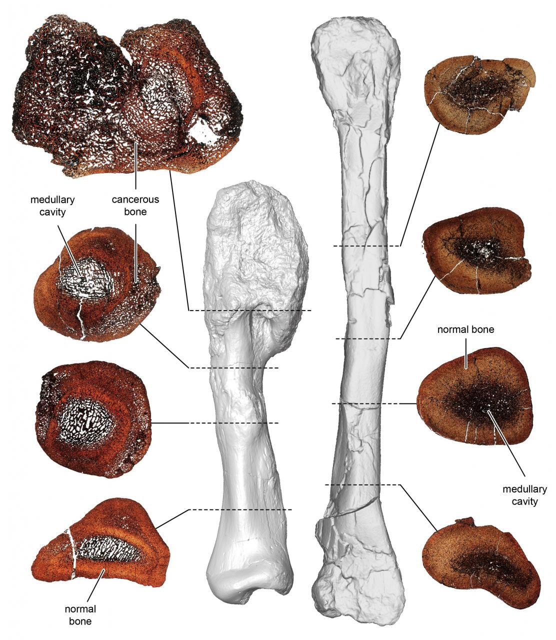 A comparison between thin sections of the cancerous leg bone and normal shin bone of the horned dinosaur Centrosaurus apertus