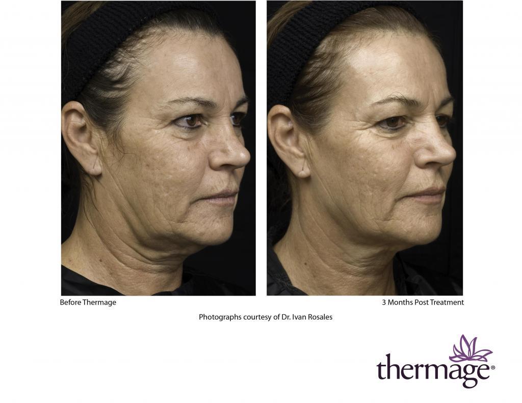 Elimina flacidez, reafirma y realza tu rostro y cuerpo con Thermage CPT System