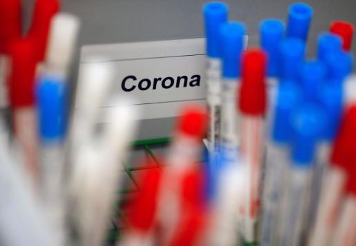 Test de detección de rápida de coronavirus en un laboratotrio médico.