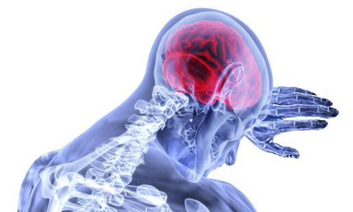 El glioblastoma es una forma mortal de cáncer cerebral en adultos.
