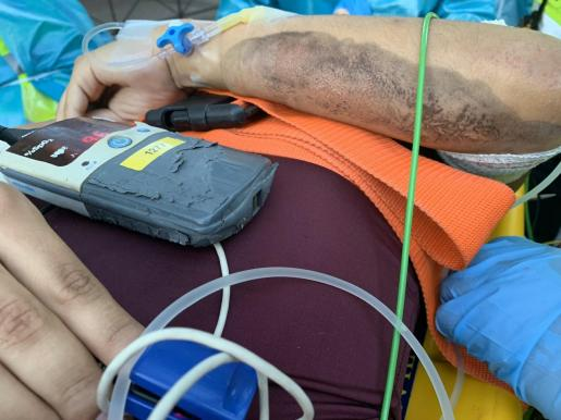 Las abrasiones que suceden a las caídas en moto son lesiones bastante frecuentes en este tipo de situaciones.