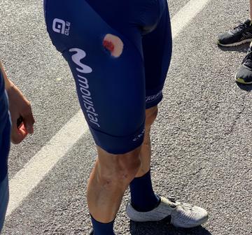 Imagen de las magulladuras que ha sufrido Enric Mas tras su caída en el Tour de Francia.