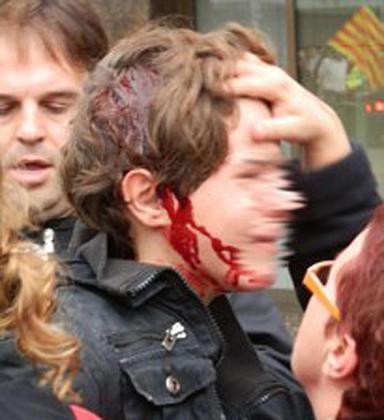 Imagen del menor herido ayer.