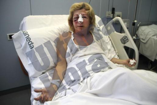 María Antonia Salazar, que presenta importantes lesiones faciales, en la clínica Juaneda.