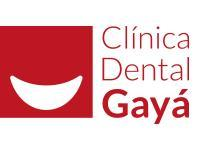 En Clínica Dental Gayá son especialistas en implantología dental.