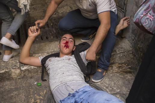 Un joven palestino herido en los choques frente a la mezquita de Al-Aqsa.
