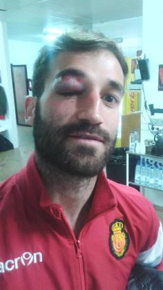 Eduard Campabadal sufrió una lesión que además de dolorosa resultaba extremadamente incómoda.