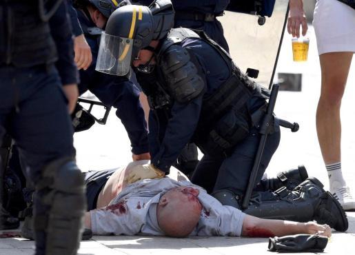 Un policía atiende a un seguidor Inglés que resultó herido en los enfrentamientos con los seguidores de Rusia en el Puerto Viejo de Marsella.