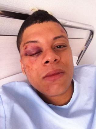 El rapero 'Delta Juan' fue hospitalizado tras la agresión que sufrió en 2012.