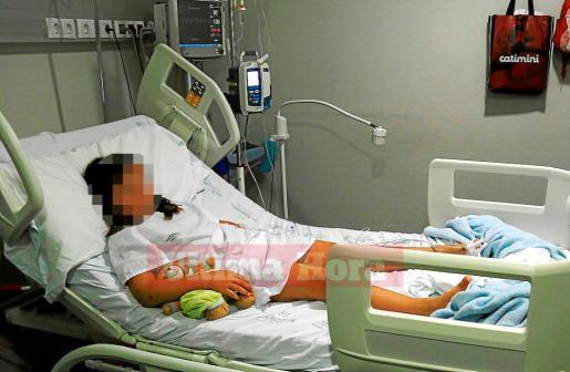 La niña permanecía hospitalizada este jueves en Son Espases tras la agresión.