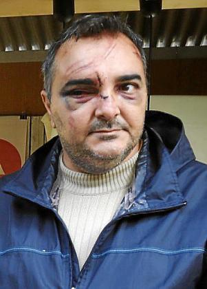 Uno de los vigilantes agredidos.
