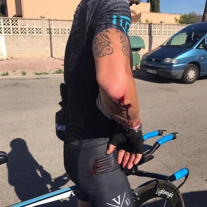 El ciclista muestra las heridas provocadas por el accidente.