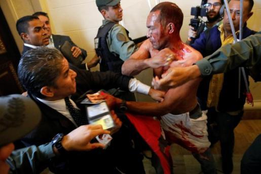 Uno de los heridos tras el 'asalto' al Parlamento.