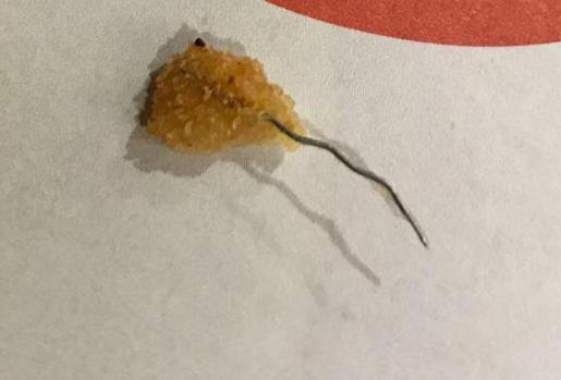 Imagen del alambre hallado dentro de un filete empanado.