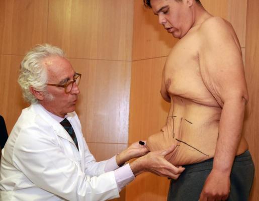 Juan Manuel Heredia, un joven de 30 años que con más de 300 kilos se convirtió en el hombre más obeso del país, perdió el título tras someterse en 2016 a un bypass gástrico por laparoscopia, una intervención a la que suma una operación de cuatro horas para quitarse 20 kilos de piel del abdomen.
