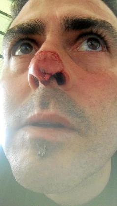 La imagen del jugador del Son Verí Diego Romero, con una herida inciso contusa en la nariz producto de un mordisco, ha provocado un gran impacto en el fútbol balear.