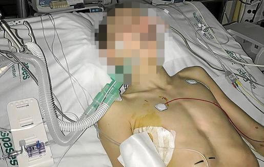 El padre del menor está muy molesto con el 112 porque «no se han molestado ni en llamarme para informarme de nada». El niño ha sido intervenido quirúrgicamente dos veces.