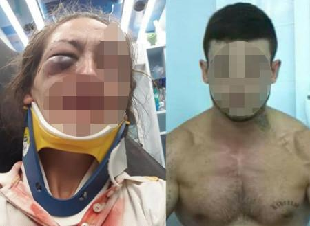 El agresor propinó varios puñetazos a la víctima en la cara y en la cabeza.