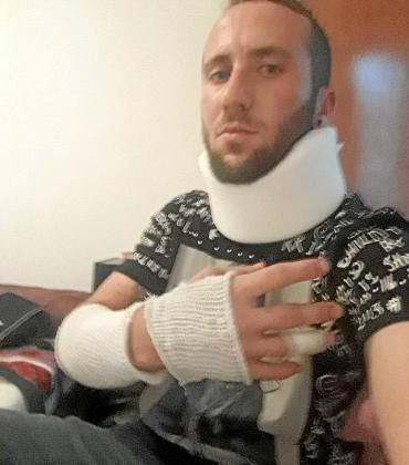 Francisco Javier Fuster muestra sus lesiones.
