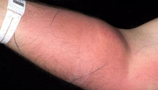 Imagen del brazo hinchado del paciente.