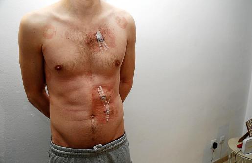 Hugo B. T., el joven de 27 años, muestra sus heridas.