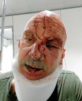 El británico de 47 años de edad residente en Calvià se encuentra ingresado en el hospital a la espera de ser intervenido quirúrgicamente.