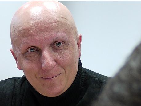 Paco Sanz, 'el hombre de los 2.000 tumores'.