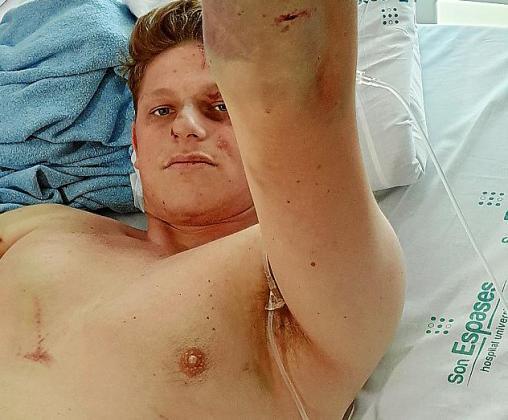 Gavin Dymock, que iba de copiloto en uno de los coches accidentados, sufrió roturas en la cadera, fémur y en varias costillas. Salió por su propio pie del coche pero se desplomó.