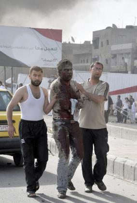 Imagen distribuida por la agencia de noticias siria SANA que muestra a un hombre ensangrentado tras resultar herido en el doble atentado perpetrado en la zona de Qazaz, a unos cinco kilómetros al sur de Damasco.
