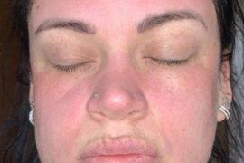 La crema facial de 4 euros que le ha destrozado la cara a una joven