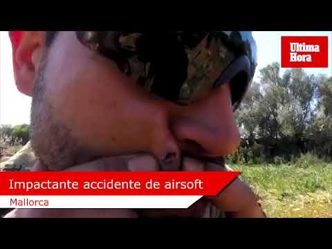 Impactante accidente durante una partida de airsoft en Mallorca