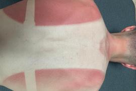 Enric Mas se quema la espalda entrenando durante el confinamiento