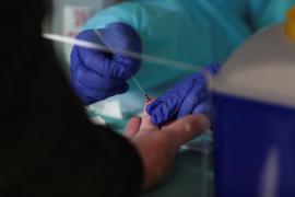 Illa dice ahora que el estudio de seroprevalencia comenzará el lunes en casi todas las CCAA