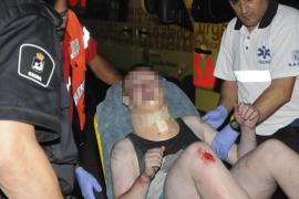 Un turista de 17 años sobrevive a una caída de ocho metros en su hotel de Magaluf
