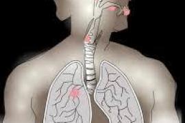 Oncólogos afirman que la cancelación de cirugías en cáncer de pulmón reduce la supervivencia hasta en un 33%
