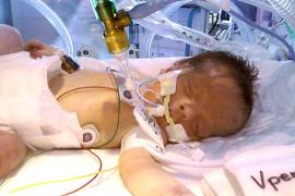 Los padres de una bebé de seis meses piden ayuda para salvarle la vida