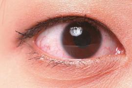 ¿Cómo saber si tengo el síndrome del ojo seco?