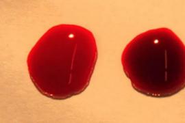 El extraño caso médico de la niña que sangra por los ojos