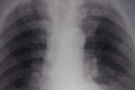 Síndrome de dificultad respiratoria aguda: ¿cuáles son los signos de alarma?
