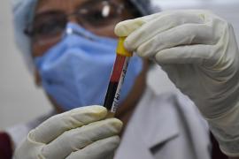 Los niños pueden tener anticuerpos de la COVID-19 y virus en su sistema a la vez