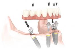 'All-on-4': Prótesis dental completa y fija para pacientes sin hueso