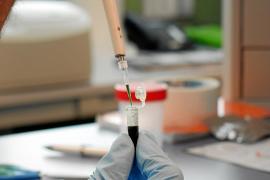 Un test balear pronostica la gravedad con que la COVID afectará al paciente