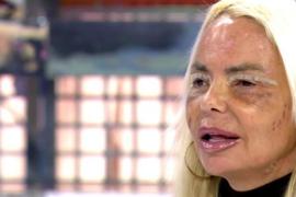 Leticia Sabater muestra su nueva cara tras los retoques estéticos