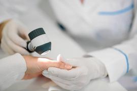 Es importante acudir a las revisiones anuales y estar pendientes de cualquier cambio en la piel