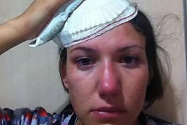 Una mallorquina, herida en la manifestación del pasado martes en Madrid