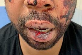 Imputados los cuatro policías franceses investigados por la paliza a un hombre negro