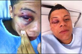 Diez jóvenes propinan una brutal paliza a un cantante rapero en la Platja de Palma