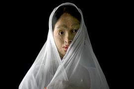 Muere una niña en Pakistán atacada con ácido por sus propios padres