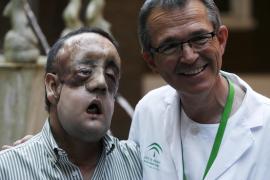 El segundo trasplantado de cara recibe el alta tres meses después