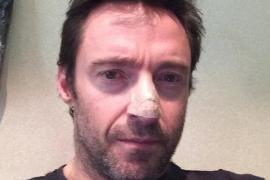 Hugh Jackman revela que padece un carcinoma en la nariz